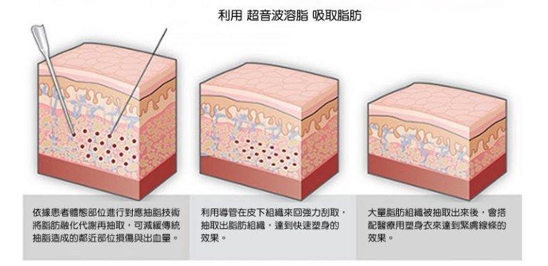 複合式抽脂精雕術,立新美學診所,ULTRA-Z原理圖,利用超音波溶脂吸取脂肪